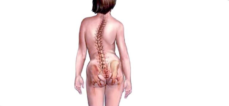 Характерные симптомы и лечение остеохондроза шейного отдела позвоночника