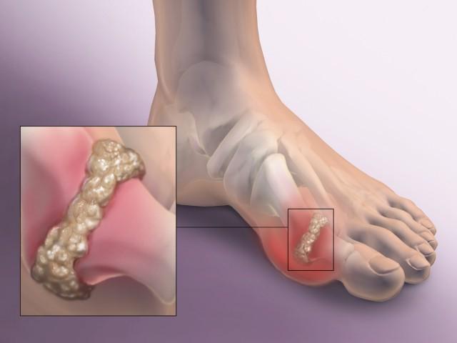 Какие симптомы у Полиартрита и как происходит его лечение
