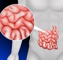 Синдром мальабсорбции: симптомы и лечение