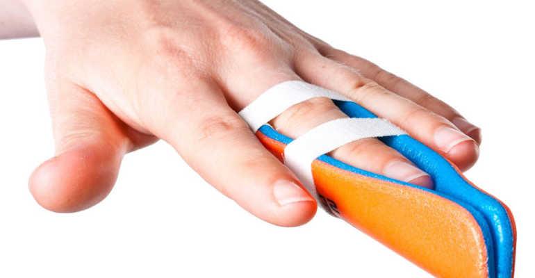 Как производится лечение вывиха пальца на руке