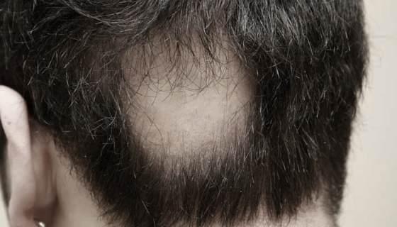 Алопеция у мужчин по андрогенному типу причины, диагностика и лечение