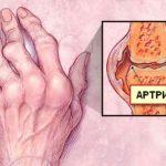 Отзывы о действии обезболивающего препарата Артрум