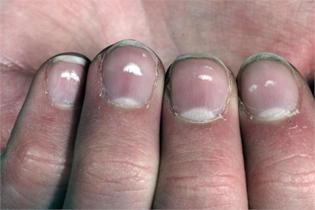 Белые пятна на ногтях рук что это означает,Post navigation,Свежие записи