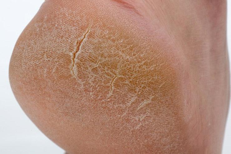 Трещины на пятках лечат мазями и кремами