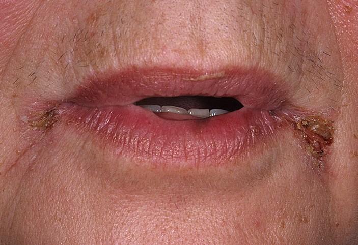 Трещины в уголках рта все причины и как долго заживают ранки,Post navigation,Свежие записи