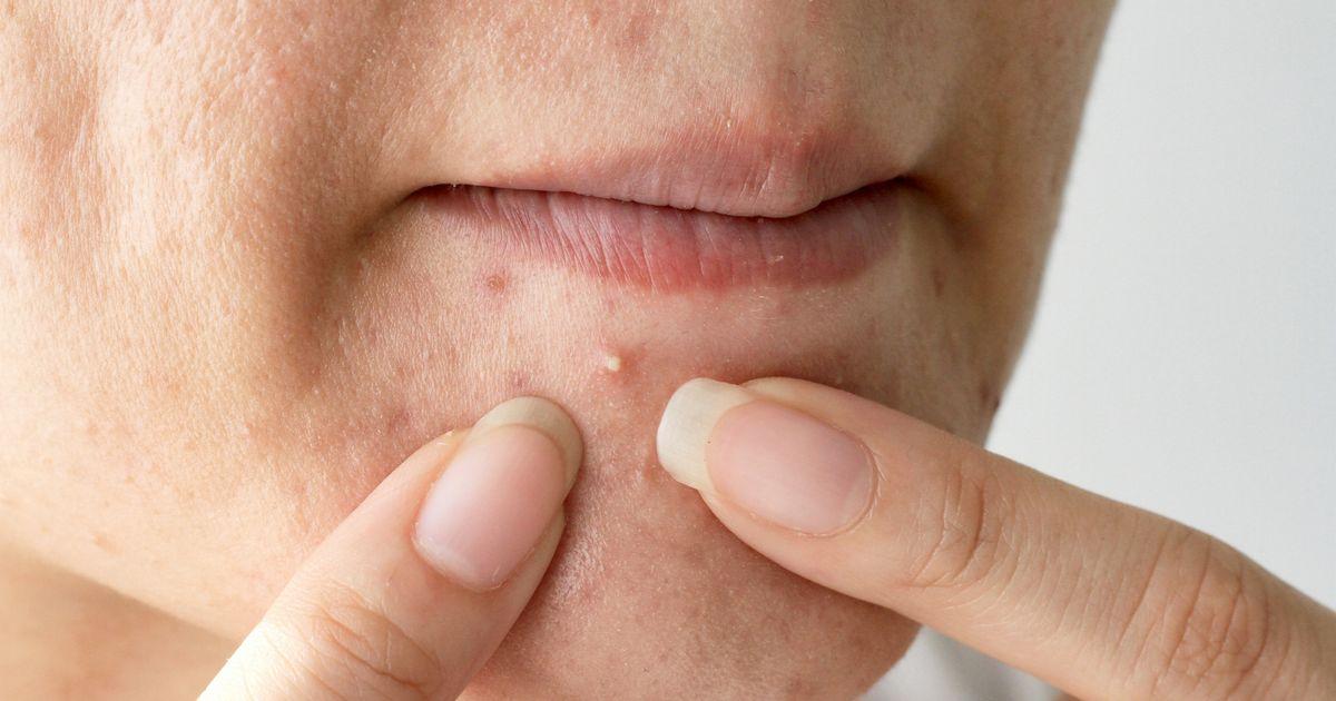 Прыщи на половых губах почему появляются и возможные заболевания,Post navigation,Свежие записи