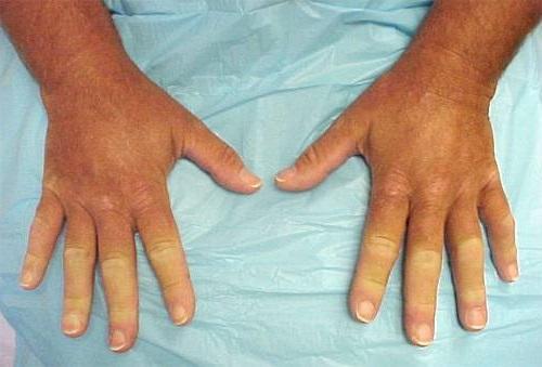 Болезнь (синдром) Рейно: симптомы и лечение