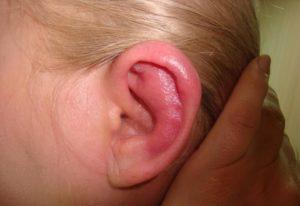 Прыщ в ухе виды, причины появления и как лечить,Post navigation,Свежие записи