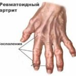 Основная информация о гранулированном порошке Немулекс