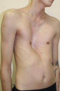 В каких случаях с деформацией грудной клетки берут в армию