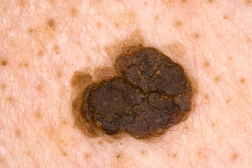 Себорейный кератоз подлежит обязательному лечению