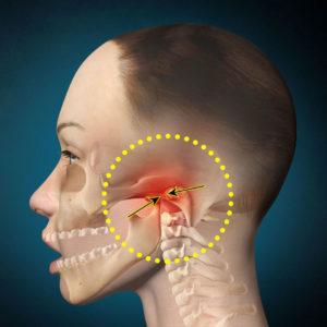 Характерные признаки артрита челюстно-лицевого сустава и варианты лечения недуга