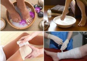 Как правильно сделать солевой компресс для суставов при артрозе