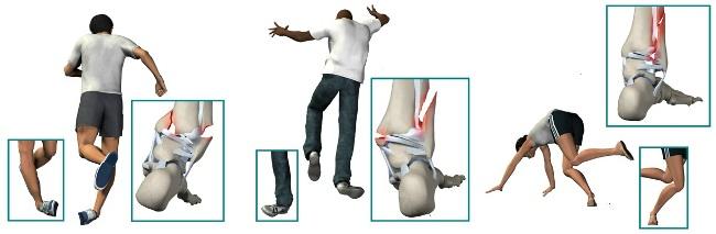 Как происходит реабилитационный период после снятия гипса при переломе лодыжки