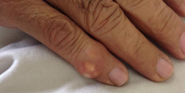 Шишка на пальце руки что это может быть,Post navigation,Свежие записи