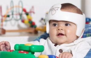 Как влияет на развитие ребенка метопический синостоз