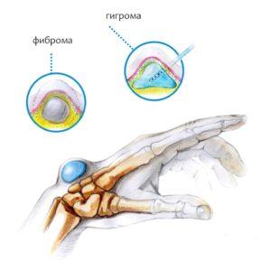 Чем опасна гигрома на пальце руки и как от нее избавиться