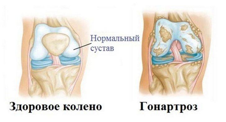 Симптомы, лечение и профилактика гонартроза коленного сустава 3 степени