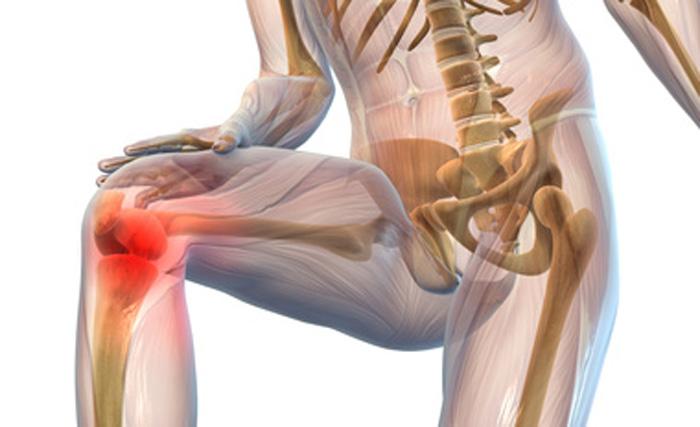 Препарат для восстановления суставов — Артра