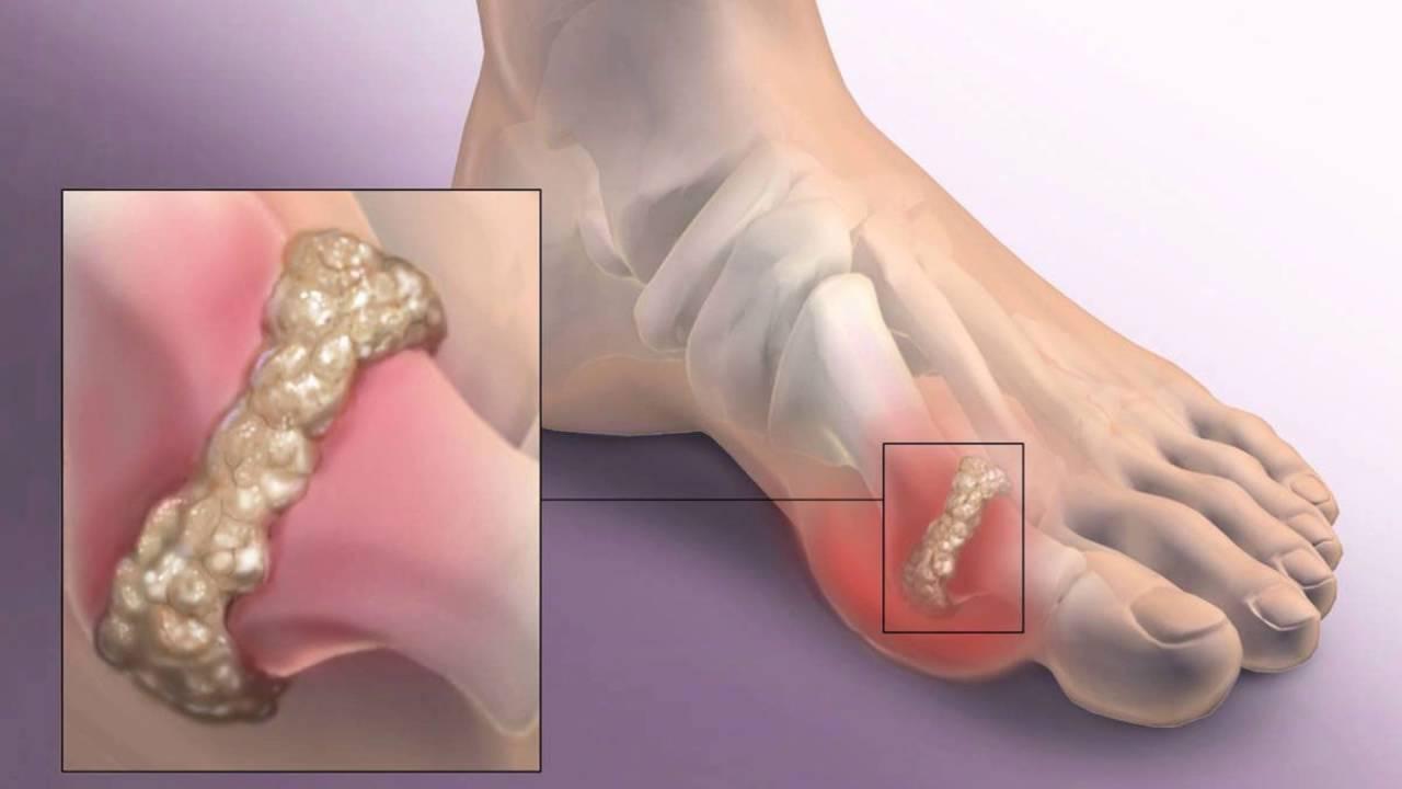 Проблемы со сгибанием большого пальца бывают вызваны артритом