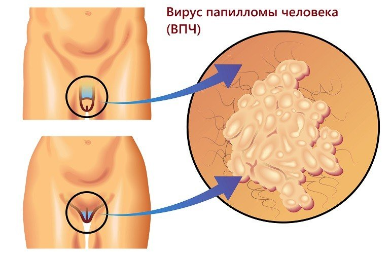 Анализы на вирус папилломы человека,Post navigation,Свежие записи