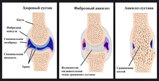 Причины ювенильного ревматоидного артрита у детей и методы лечения