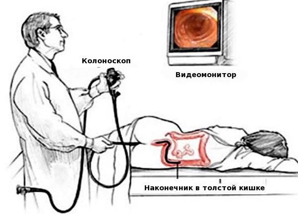 Колоноскопия кишечника что это такое и как подготовиться?