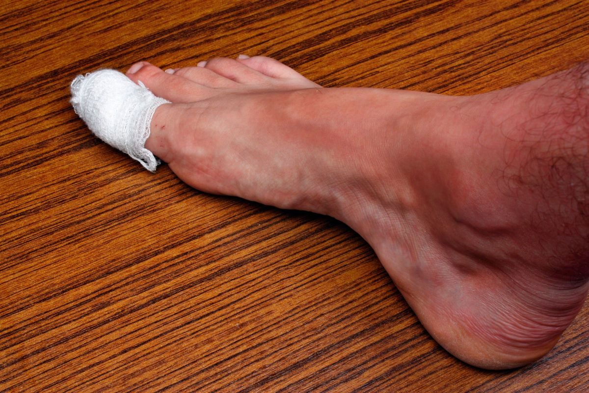 Почему почернел палец на ноге,Post navigation,Свежие записи