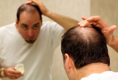 Очаговая алопеция у мужчин: лечение заболевания