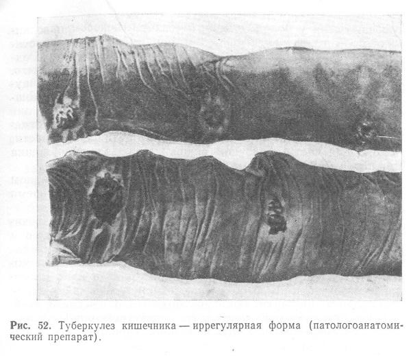 Туберкулез кишечника