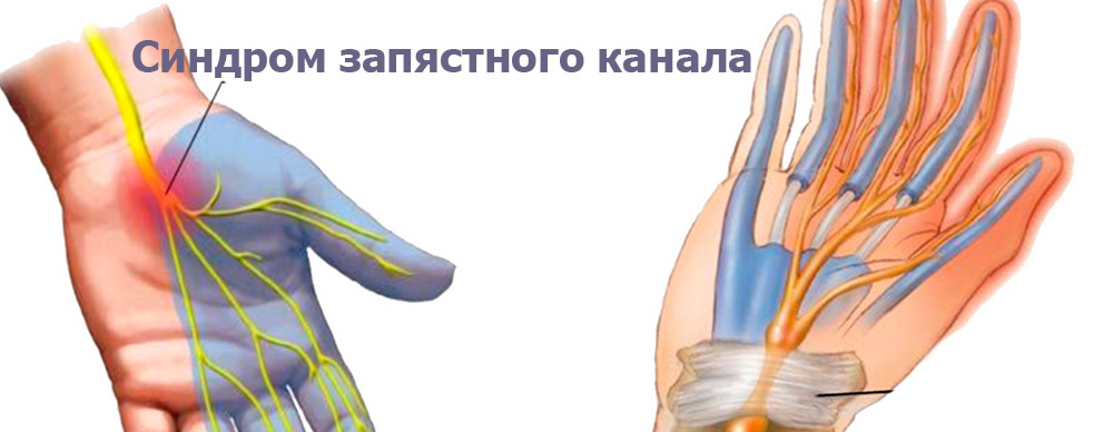 Почему при беременности болят суставы пальцев рук? Симптомы и причины