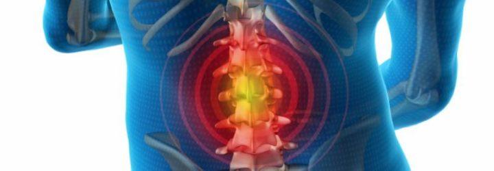 Причины и методы лечения секвестрированной грыжи позвоночника