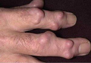 Причины возникновения и развития ревматоидных узелков