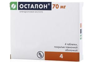 Эффективность применения лекарственного препарата Осталон для лечения суставов