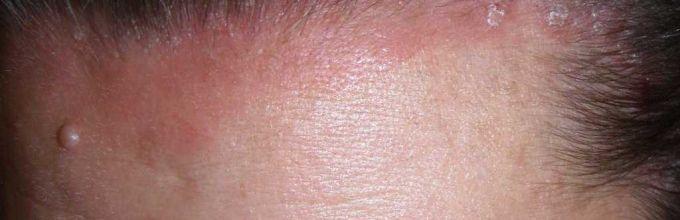 Диета при псориазе волосистой части головы