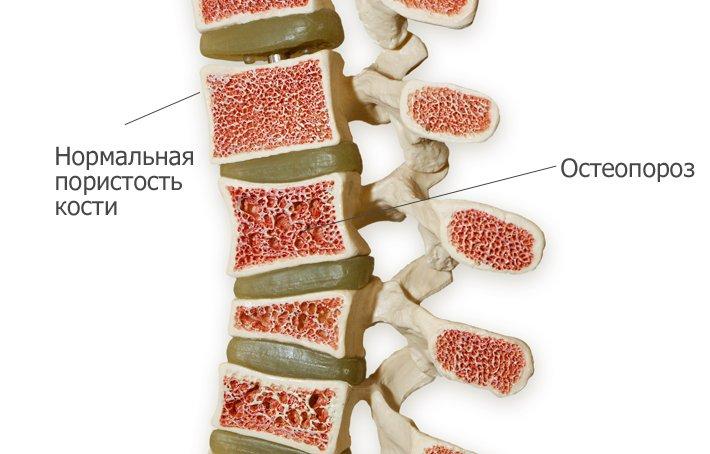 Основные симптомы и методы лечения остеопороза позвоночника