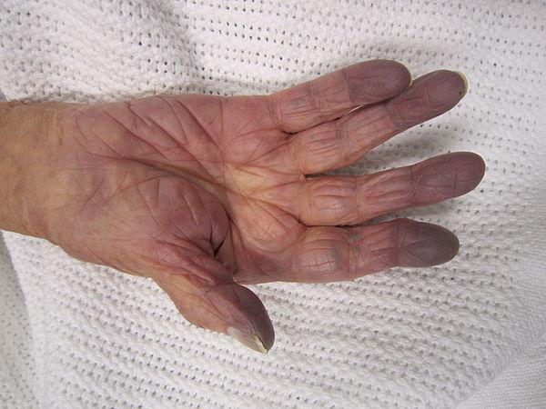 Особенности синдрома плечо кисть, лечение и профилактика заболевания