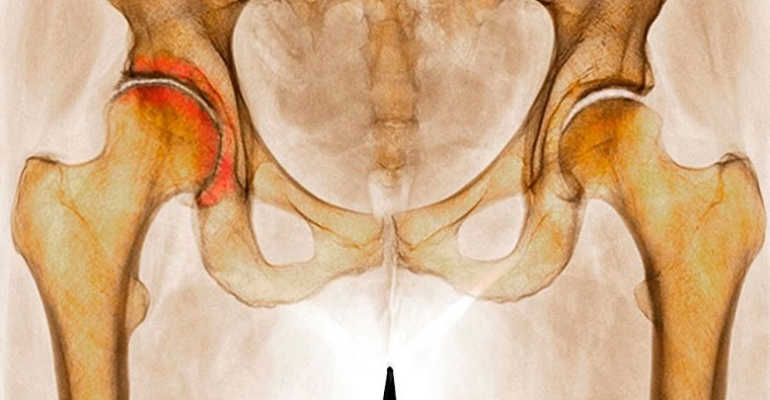 Эффективное лечение без операции коксартроза тазобедренного сустава 3 степени
