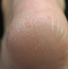 Трещины на пятках: причины и лечение