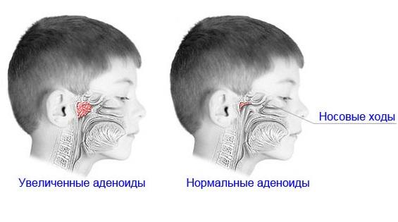 У некоторых детей миндалины разрастаются и с превышением нормальных параметров перестают защищать горло от различных инфекций. Воспалительный процесс в совокупности с разросшимися миндалинами приводит к значительному сужению просвета гортани, что потенциально опасно удушьем во время сна.