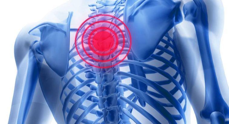 Что такое дорсалгия и можно ли ее лечить