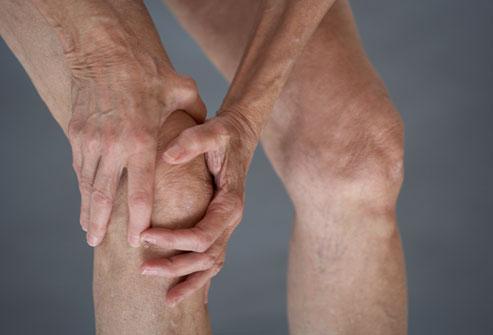 Перелом надколенника подлежит лечению