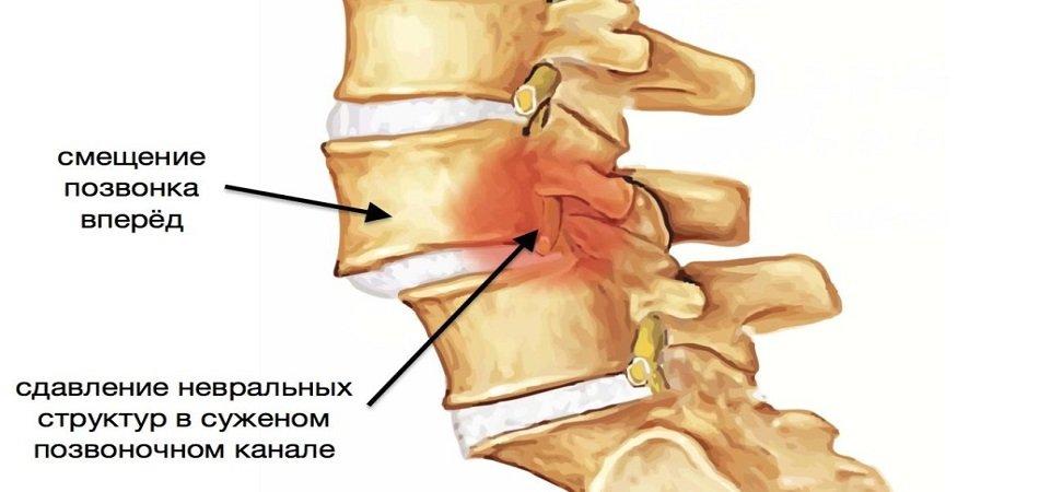Причины возникновения боли в спине и ее лечение