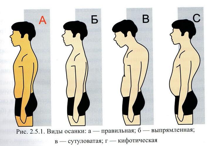 Как диагностировать и лечить кифатическую осанку