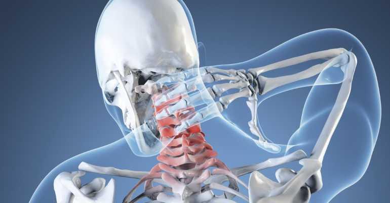 Что такое вертебро-базилярная недостаточность на фоне шейного остеохондроза и чем она опасна