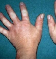 Склеродермия что это такое и как лечить?