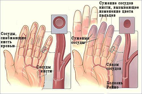 Синдром Рейно характеризуется проблемами с циркуляцией крови во всем организме, но пальцы рук страдают от этого больше всего.