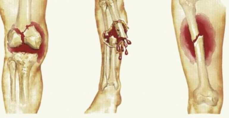 Факторы влияющие на процесс срастания костей после перелома