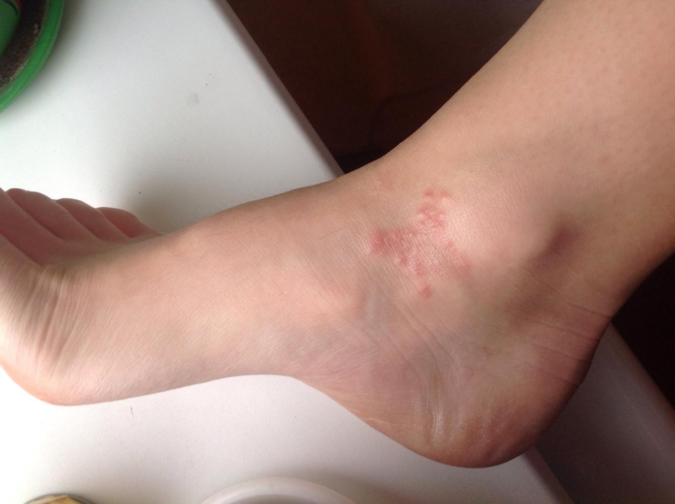 Щиколотки, как и другие части тела, подвержены высыпаниям