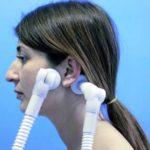 Наиболее очевидные симптомы анкилоза ВНЧС